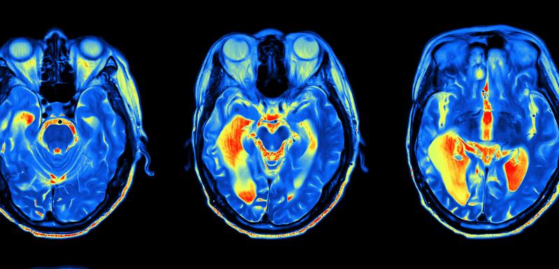 Anxiété durant la grossesse : des séquelles pour le cerveau du fœtus ?